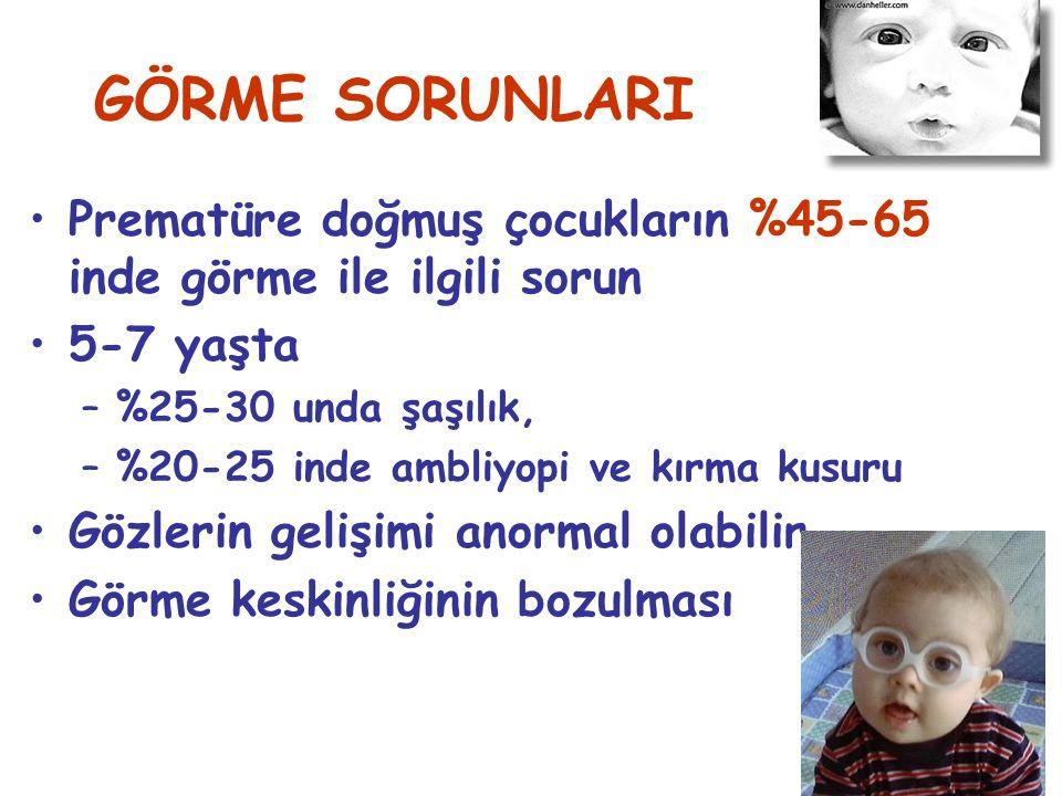 GÖRME SORUNLARI Prematüre doğmuş çocukların %45-65 inde görme ile ilgili sorun 5-7 yaşta –%25-30 unda şaşılık, –%20-25 inde ambliyopi ve kırma kusuru Gözlerin gelişimi anormal olabilir Görme keskinliğinin bozulması