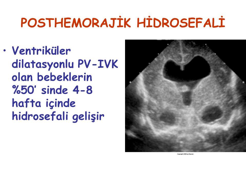 POSTHEMORAJİK HİDROSEFALİ Ventriküler dilatasyonlu PV-IVK olan bebeklerin %50' sinde 4-8 hafta içinde hidrosefali gelişir