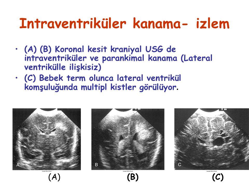Intraventriküler kanama- izlem (A) (B) Koronal kesit kraniyal USG de intraventriküler ve parankimal kanama (Lateral ventrikülle ilişkisiz) (C) Bebek term olunca lateral ventrikül komşuluğunda multipl kistler görülüyor.