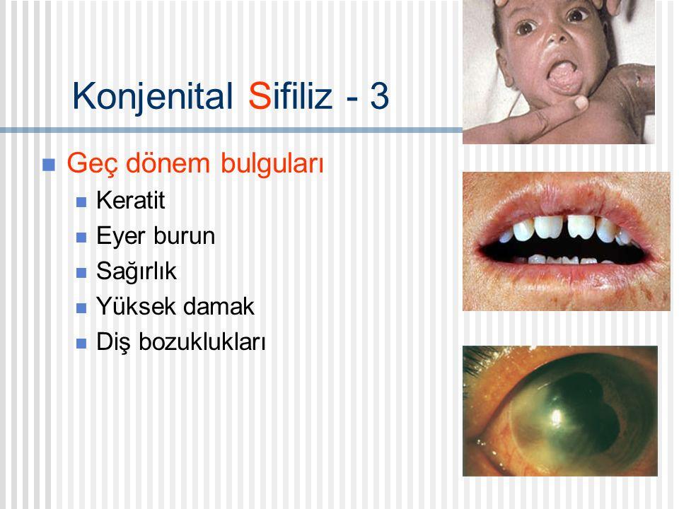 Konjenital Sifiliz - 3 Geç dönem bulguları Keratit Eyer burun Sağırlık Yüksek damak Diş bozuklukları
