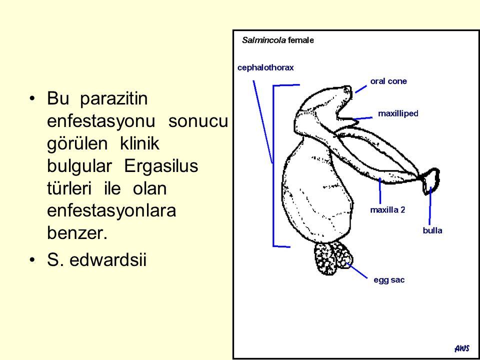 Bu parazitin enfestasyonu sonucu görülen klinik bulgular Ergasilus türleri ile olan enfestasyonlara benzer.