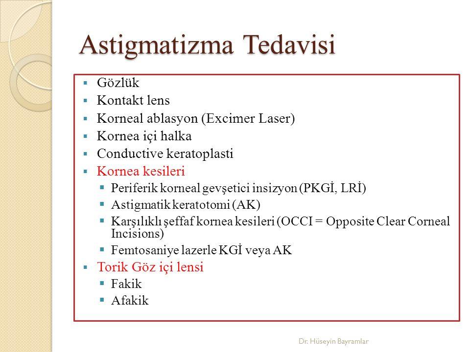 Astigmatizma Tedavisi  Gözlük  Kontakt lens  Korneal ablasyon (Excimer Laser)  Kornea içi halka  Conductive keratoplasti  Kornea kesileri  Periferik korneal gevşetici insizyon (PKGİ, LRİ)  Astigmatik keratotomi (AK)  Karşılıklı şeffaf kornea kesileri (OCCI = Opposite Clear Corneal Incisions)  Femtosaniye lazerle KGİ veya AK  Torik Göz içi lensi  Fakik  Afakik Dr.