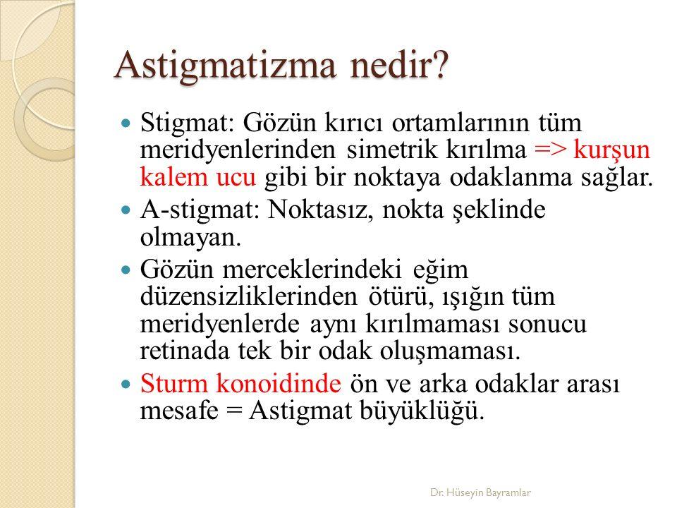 Astigmatizma nedir.