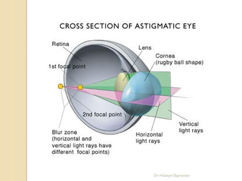 Astigmatın görme üzerine etkisi 1 D üzerindeki astigmatlar genellikle optik düzeltmeye muhtaçtır.