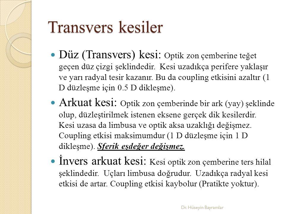 Transvers kesiler Düz (Transvers) kesi: Optik zon çemberine teğet geçen düz çizgi şeklindedir.