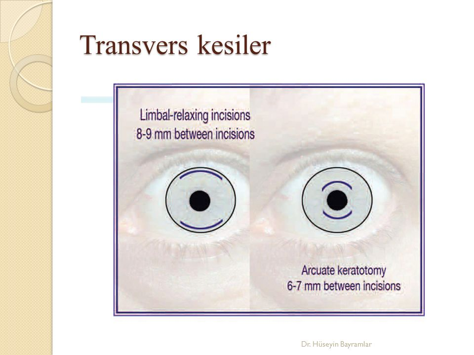 Transvers kesiler Dr. Hüseyin Bayramlar