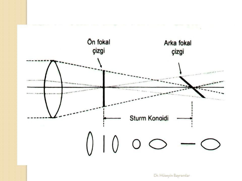 Astigmatizma kaynakları Kornea: Ektazi, skar, ülser… Lens: Subluksasyon, dislokasyon, kolobom… Retina: Stafilom, tm… Dr.