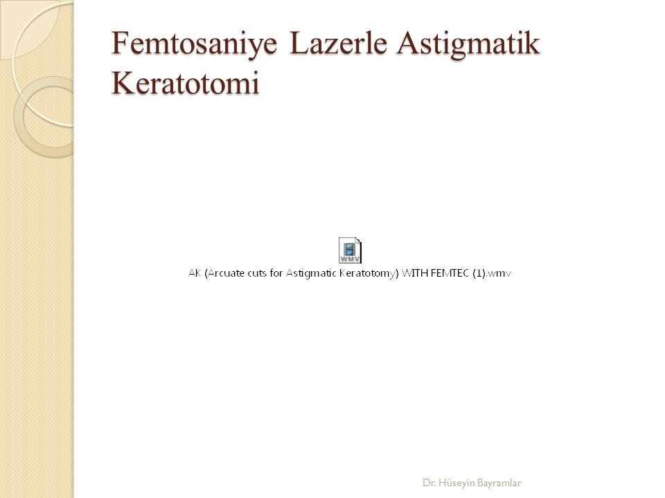 Femtosaniye Lazerle Astigmatik Keratotomi Dr. Hüseyin Bayramlar