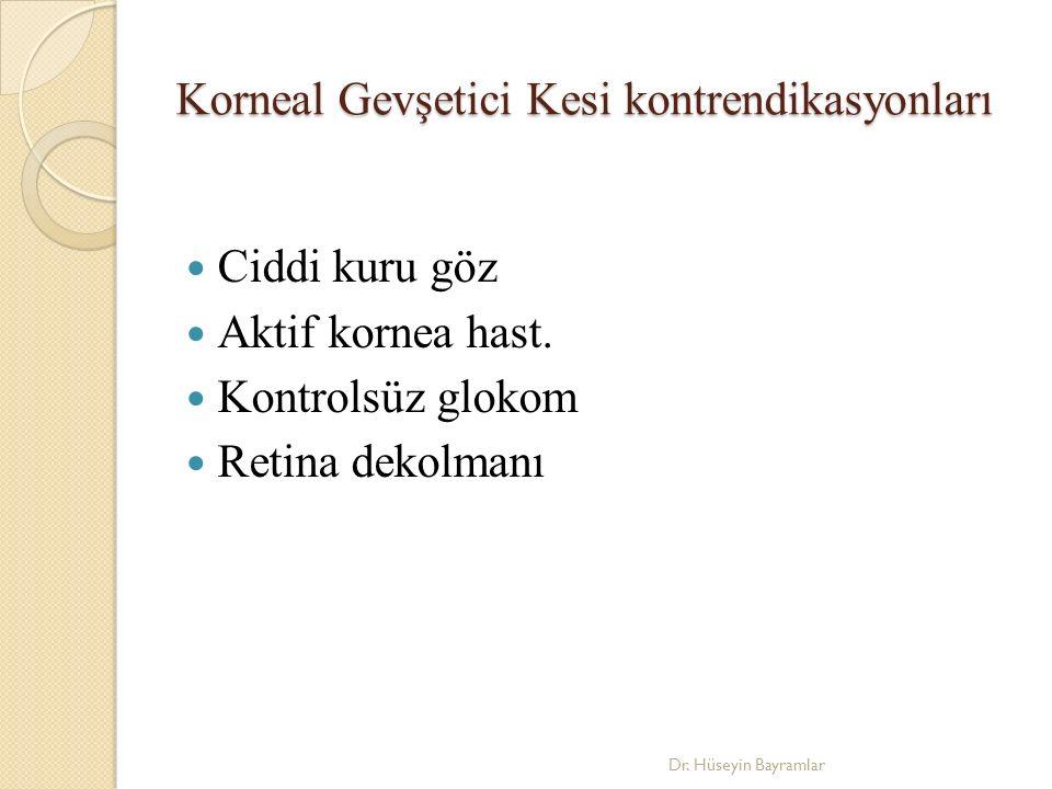 Korneal Gevşetici Kesi kontrendikasyonları Ciddi kuru göz Aktif kornea hast.