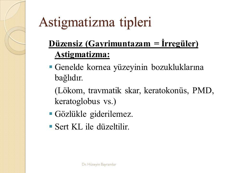 Astigmatizma tipleri Düzensiz (Gayrimuntazam = İrregüler) Astigmatizma:  Genelde kornea yüzeyinin bozukluklarına bağlıdır.
