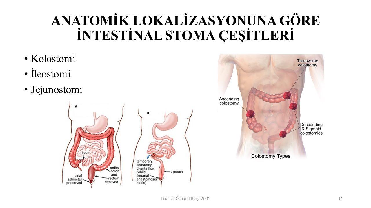ANATOMİK LOKALİZASYONUNA GÖRE İNTESTİNAL STOMA ÇEŞİTLERİ Kolostomi İleostomi Jejunostomi 11Erdil ve Özhan Elbaş, 2001