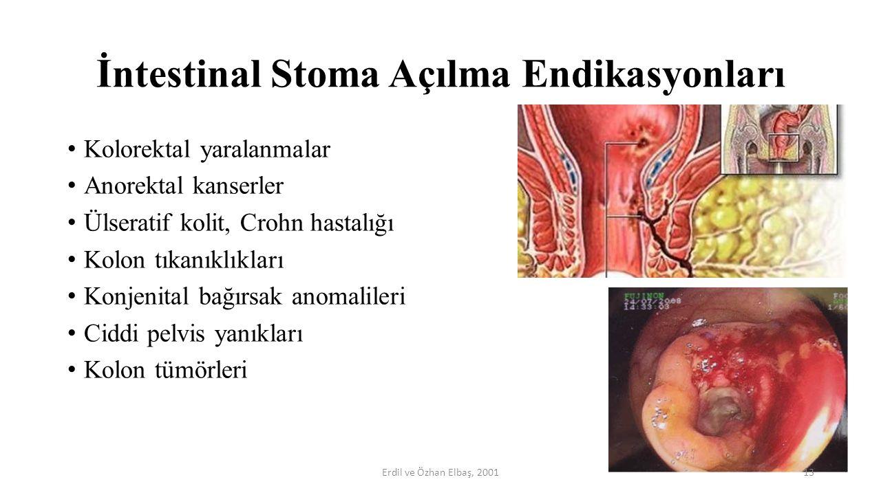İntestinal Stoma Açılma Endikasyonları Kolorektal yaralanmalar Anorektal kanserler Ülseratif kolit, Crohn hastalığı Kolon tıkanıklıkları Konjenital ba