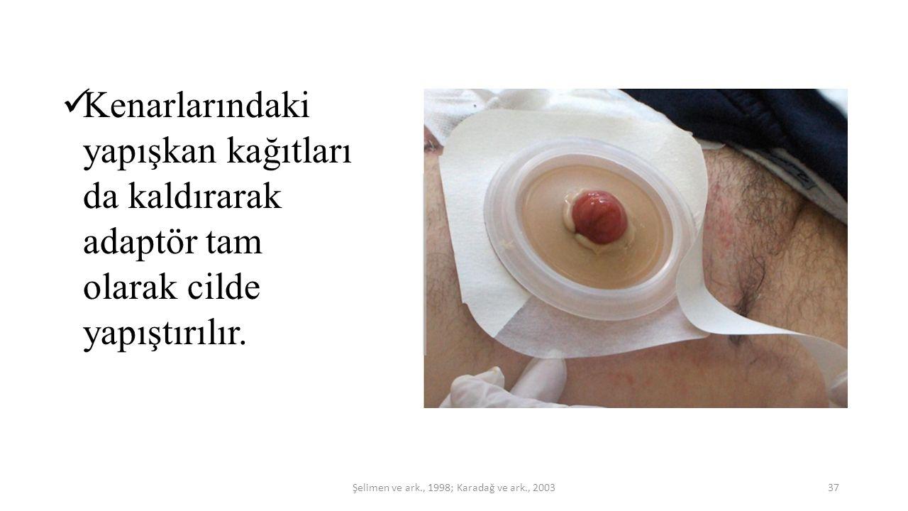 Kenarlarındaki yapışkan kağıtları da kaldırarak adaptör tam olarak cilde yapıştırılır. 37Şelimen ve ark., 1998; Karadağ ve ark., 2003
