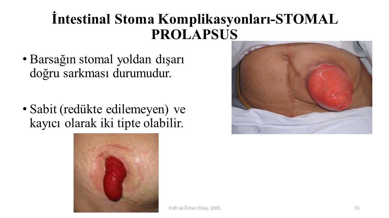 İntestinal Stoma Komplikasyonları-STOMAL PROLAPSUS Barsağın stomal yoldan dışarı doğru sarkması durumudur. Sabit (redükte edilemeyen) ve kayıcı olarak