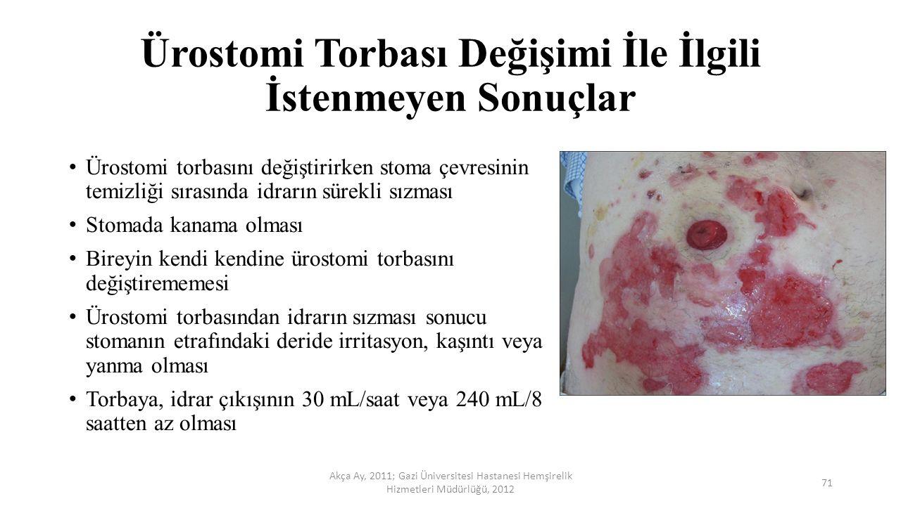 Ürostomi Torbası Değişimi İle İlgili İstenmeyen Sonuçlar Ürostomi torbasını değiştirirken stoma çevresinin temizliği sırasında idrarın sürekli sızması
