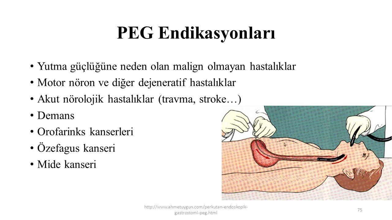 PEG Endikasyonları Yutma güçlüğüne neden olan malign olmayan hastalıklar Motor nöron ve diğer dejeneratif hastalıklar Akut nörolojik hastalıklar (trav