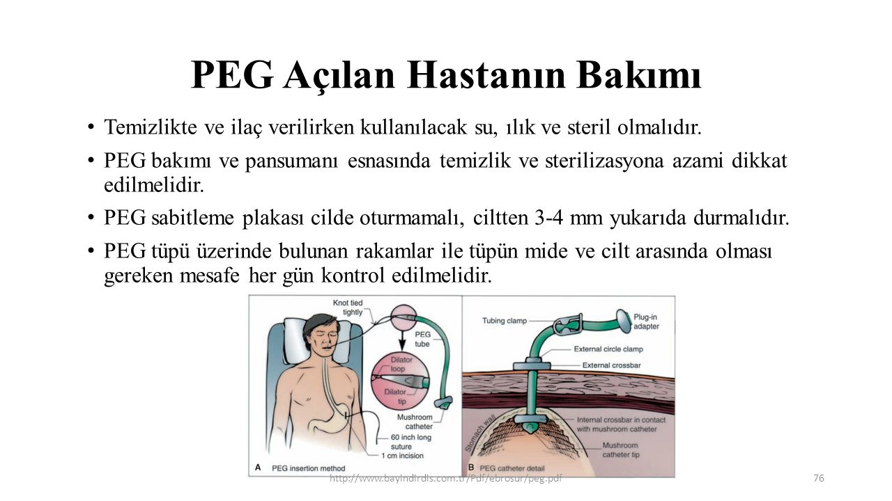 PEG Açılan Hastanın Bakımı Temizlikte ve ilaç verilirken kullanılacak su, ılık ve steril olmalıdır. PEG bakımı ve pansumanı esnasında temizlik ve ster