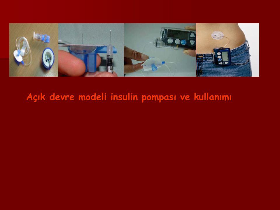 Açık devre modeli insulin pompası ve kullanımı Açık devre modeli insulin pompası ve kullanımı
