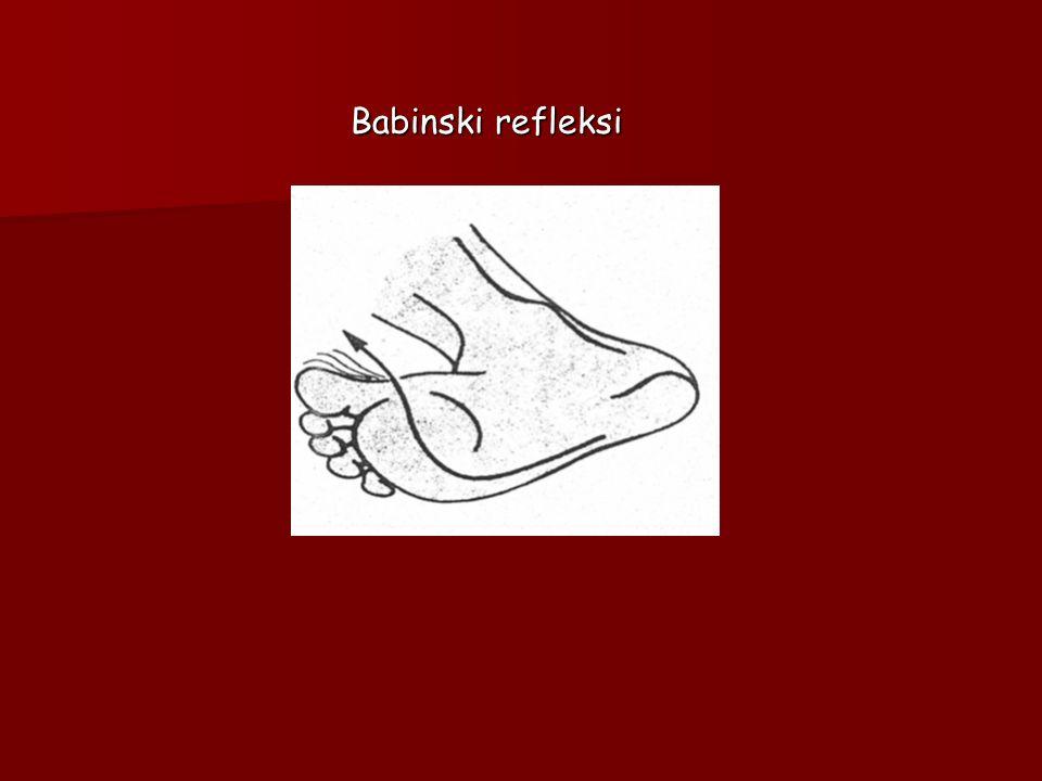 Babinski refleksi Babinski refleksi