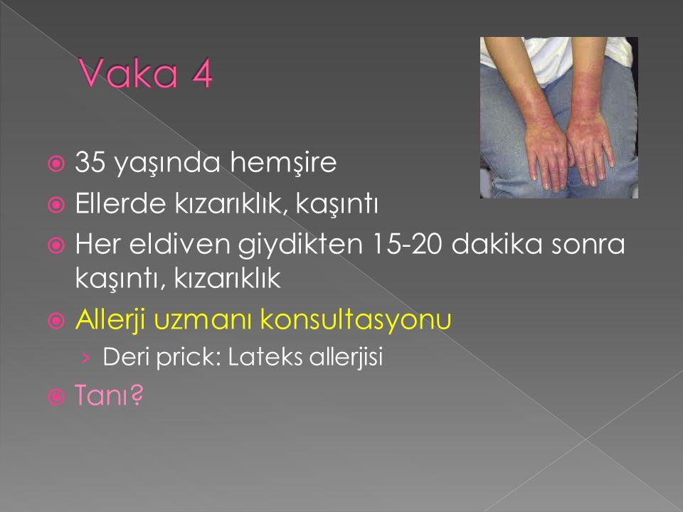  35 yaşında hemşire  Ellerde kızarıklık, kaşıntı  Her eldiven giydikten 15-20 dakika sonra kaşıntı, kızarıklık  Allerji uzmanı konsultasyonu › Deri prick: Lateks allerjisi  Tanı?