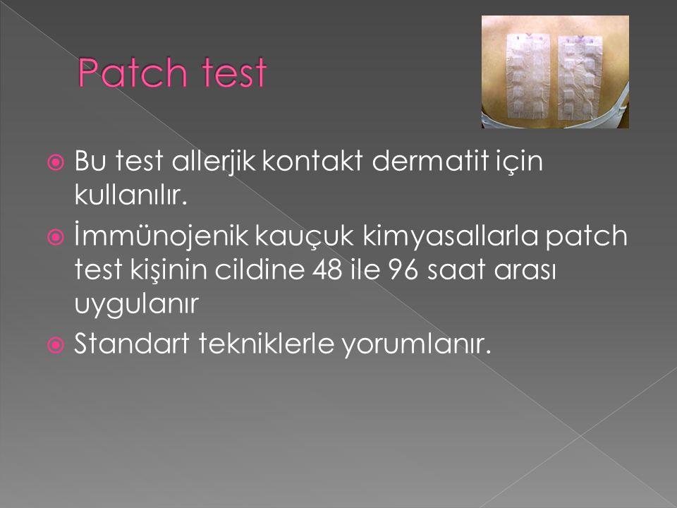  Bu test allerjik kontakt dermatit için kullanılır.
