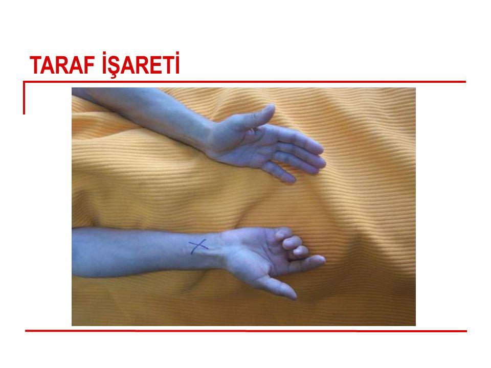 TARAF İŞARETİ