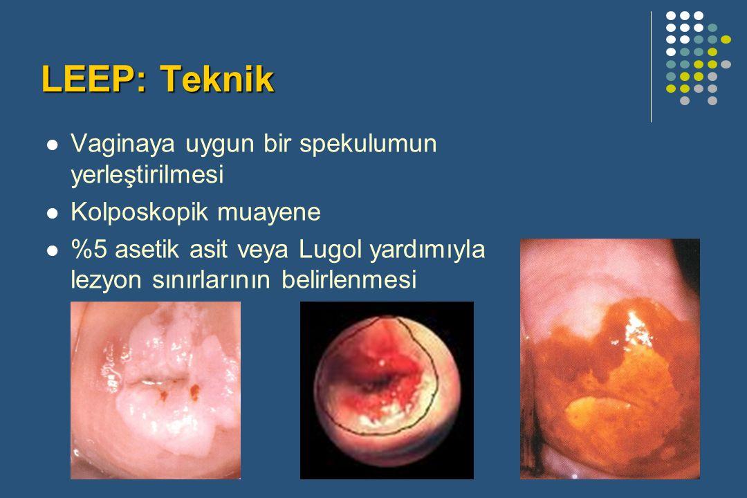 LEEP: Teknik Vaginaya uygun bir spekulumun yerleştirilmesi Kolposkopik muayene %5 asetik asit veya Lugol yardımıyla lezyon sınırlarının belirlenmesi