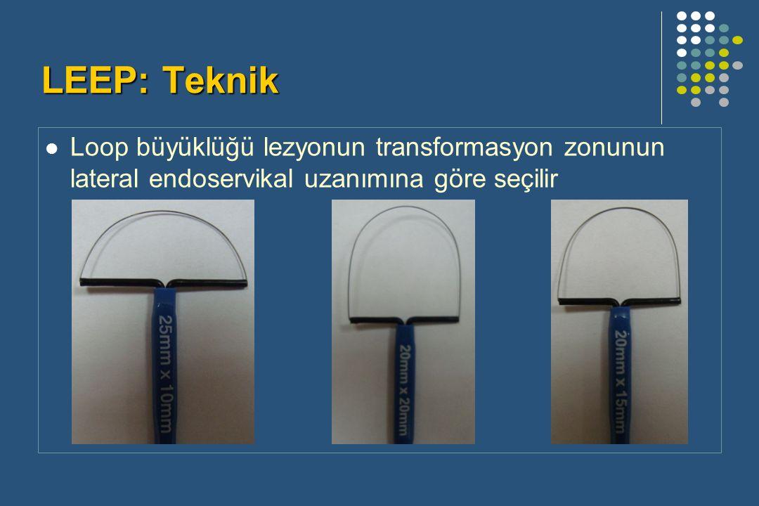 LEEP: Teknik Loop büyüklüğü lezyonun transformasyon zonunun lateral endoservikal uzanımına göre seçilir