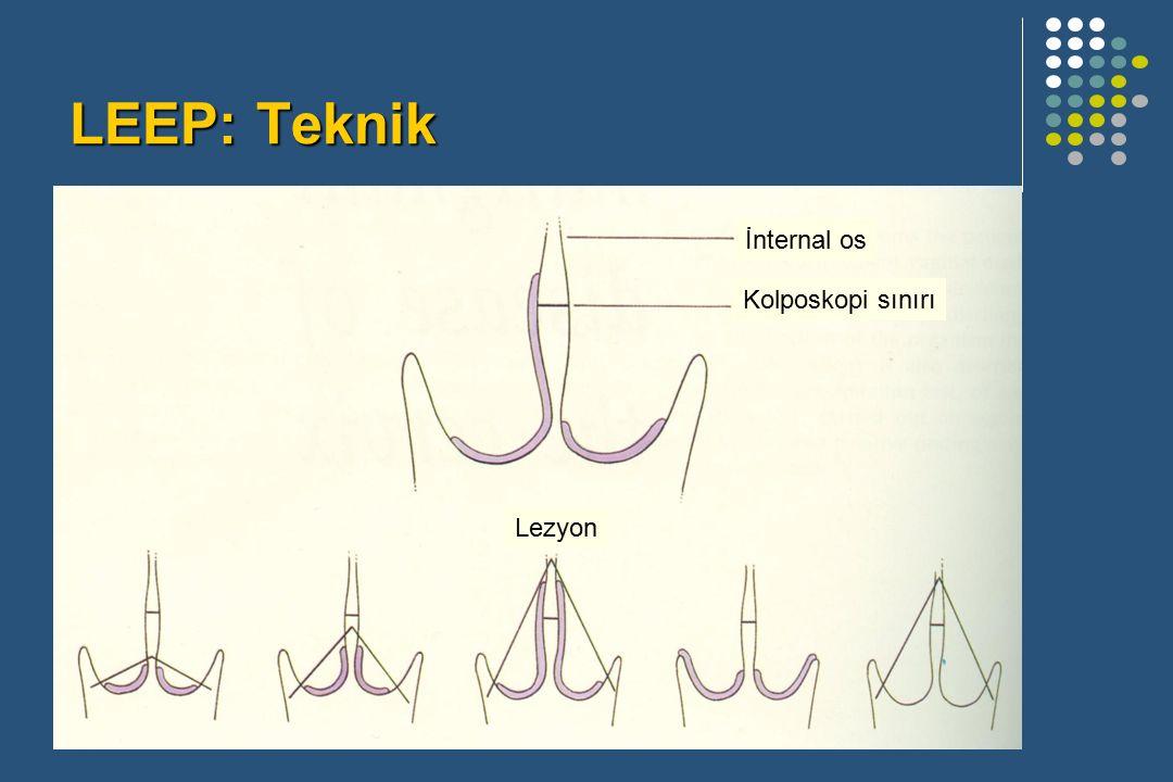 LEEP: Teknik İnternal os Kolposkopi sınırı Lezyon