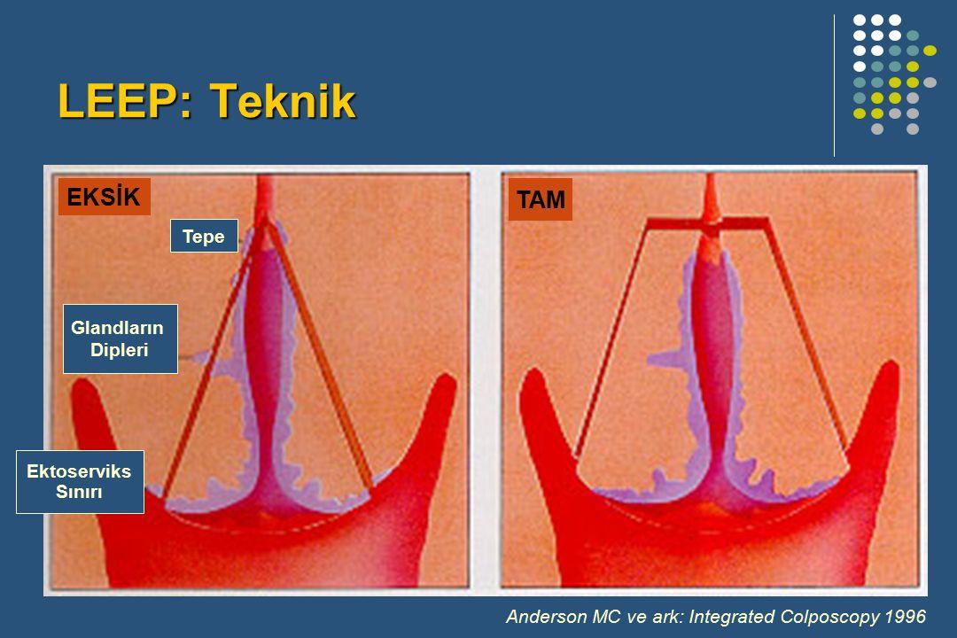 Tepe Glandların Dipleri Ektoserviks Sınırı EKSİK TAM Anderson MC ve ark: Integrated Colposcopy 1996