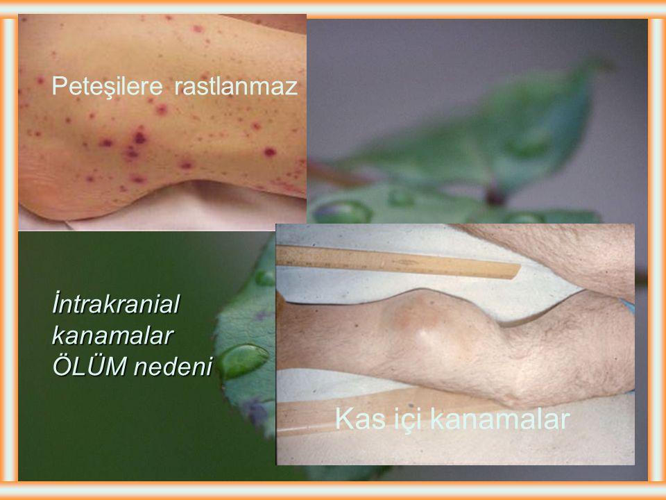 İlk başvuru semptomu %30 olguda sünnet kanaması %1-2 olguda ise yenidoğan döneminde intrakraniyal kanama