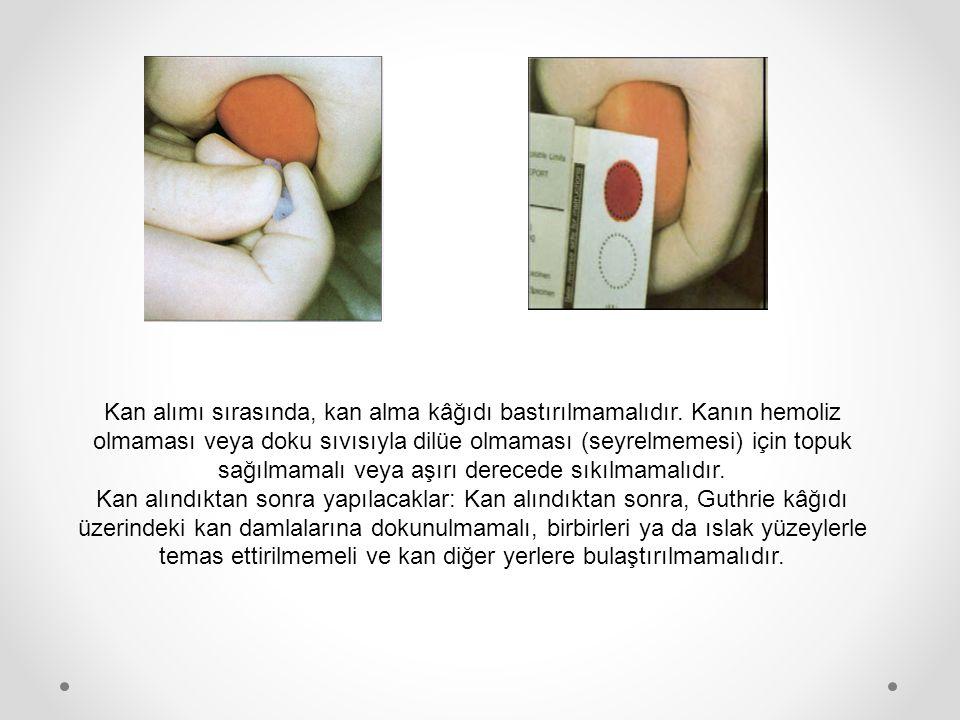 Kan alımı sırasında, kan alma kâğıdı bastırılmamalıdır. Kanın hemoliz olmaması veya doku sıvısıyla dilüe olmaması (seyrelmemesi) için topuk sağılmamal