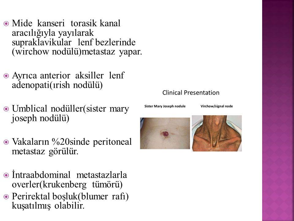  Mide kanseri torasik kanal aracılığıyla yayılarak supraklavikular lenf bezlerinde (wirchow nodülü)metastaz yapar.  Ayrıca anterior aksiller lenf ad