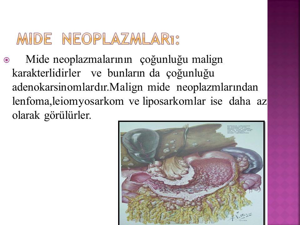  Mide neoplazmalarının çoğunluğu malign karakterlidirler ve bunların da çoğunluğu adenokarsinomlardır.Malign mide neoplazmlarından lenfoma,leiomyosar