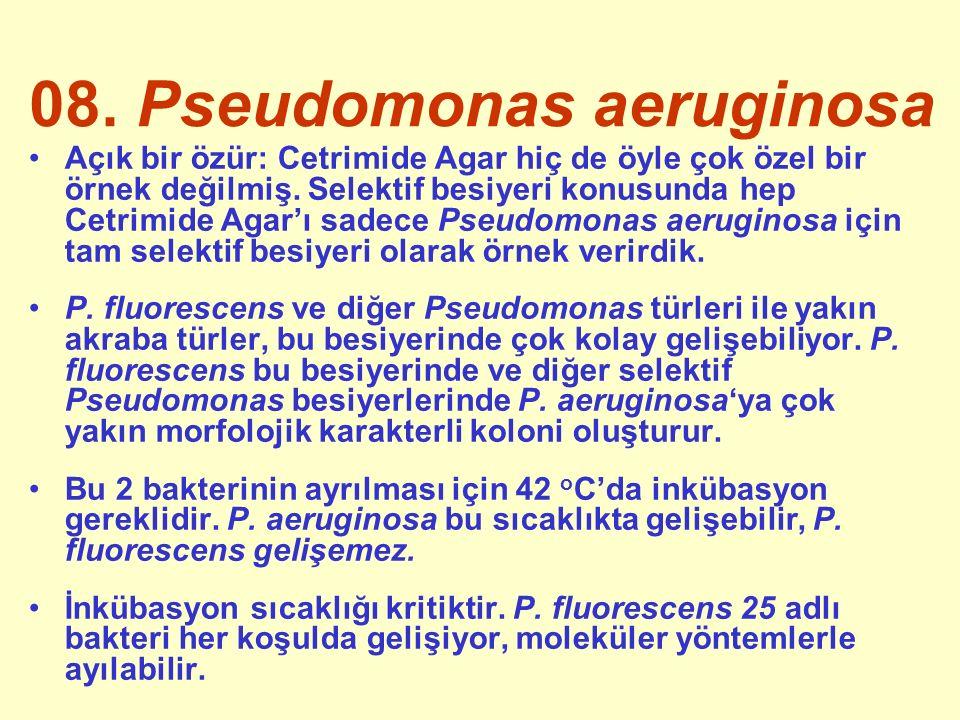 08. Pseudomonas aeruginosa Açık bir özür: Cetrimide Agar hiç de öyle çok özel bir örnek değilmiş.