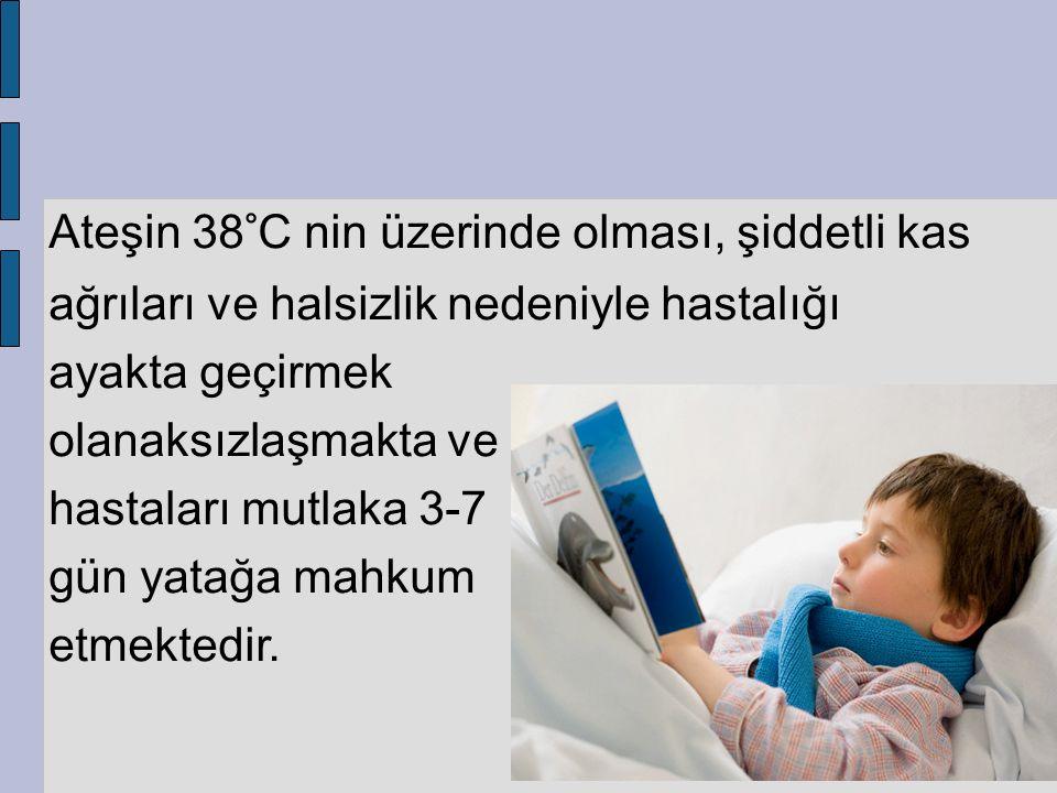 Ateşin 38°C nin üzerinde olması, şiddetli kas ağrıları ve halsizlik nedeniyle hastalığı ayakta geçirmek olanaksızlaşmakta ve hastaları mutlaka 3-7 gün yatağa mahkum etmektedir.