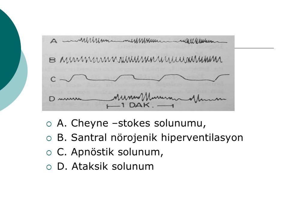  A. Cheyne –stokes solunumu,  B. Santral nörojenik hiperventilasyon  C. Apnöstik solunum,  D. Ataksik solunum