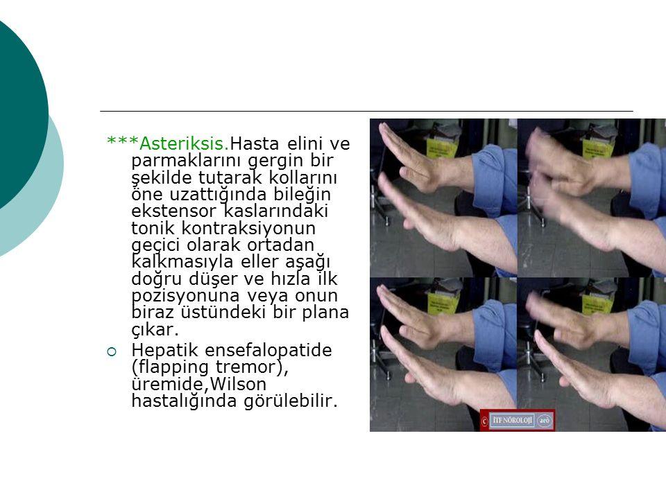 ***Asteriksis.Hasta elini ve parmaklarını gergin bir şekilde tutarak kollarını öne uzattığında bileğin ekstensor kaslarındaki tonik kontraksiyonun geç