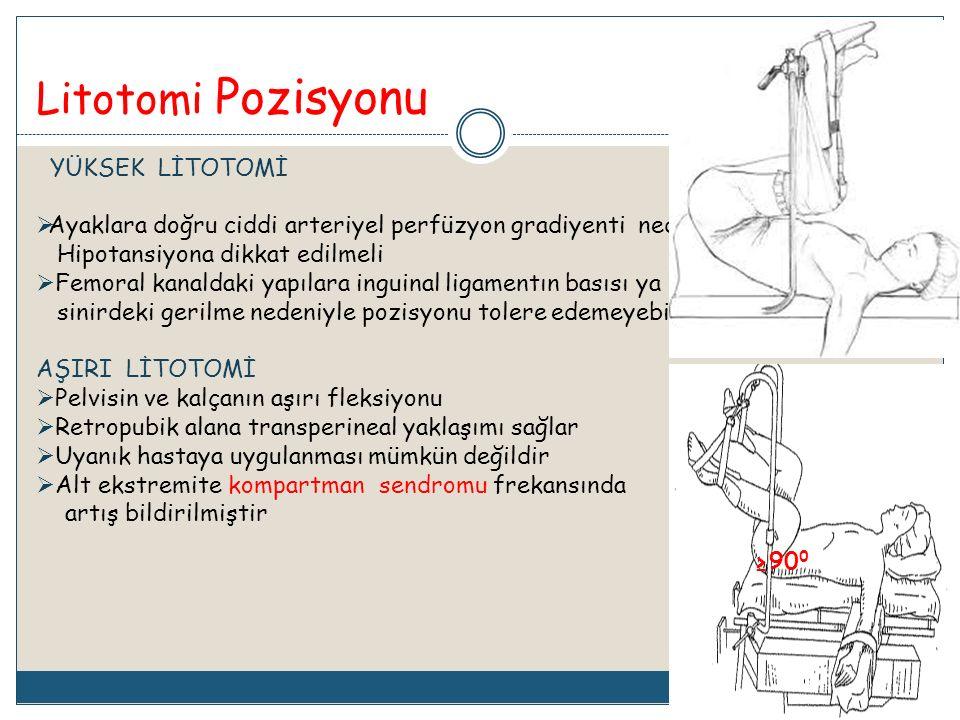 Litotomi Pozisyonu YÜKSEK LİTOTOMİ  Ayaklara doğru ciddi arteriyel perfüzyon gradiyenti nedeniyle sistemik Hipotansiyona dikkat edilmeli  Femoral ka