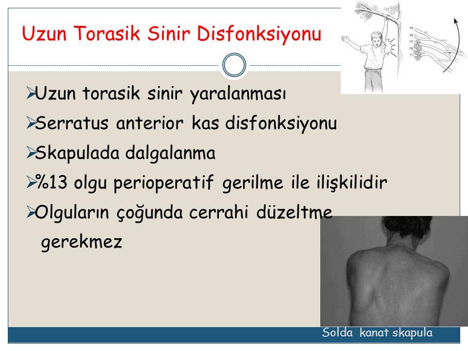 Uzun Torasik Sinir Disfonksiyonu Solda kanat skapula  Uzun torasik sinir yaralanması  Serratus anterior kas disfonksiyonu  Skapulada dalgalanma  %