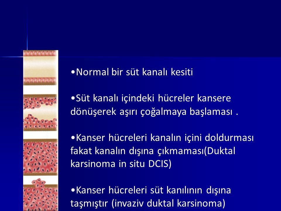 Normal bir süt kanalı kesiti Süt kanalı içindeki hücreler kansere dönüşerek aşırı çoğalmaya başlaması. Kanser hücreleri kanalın içini doldurması fakat