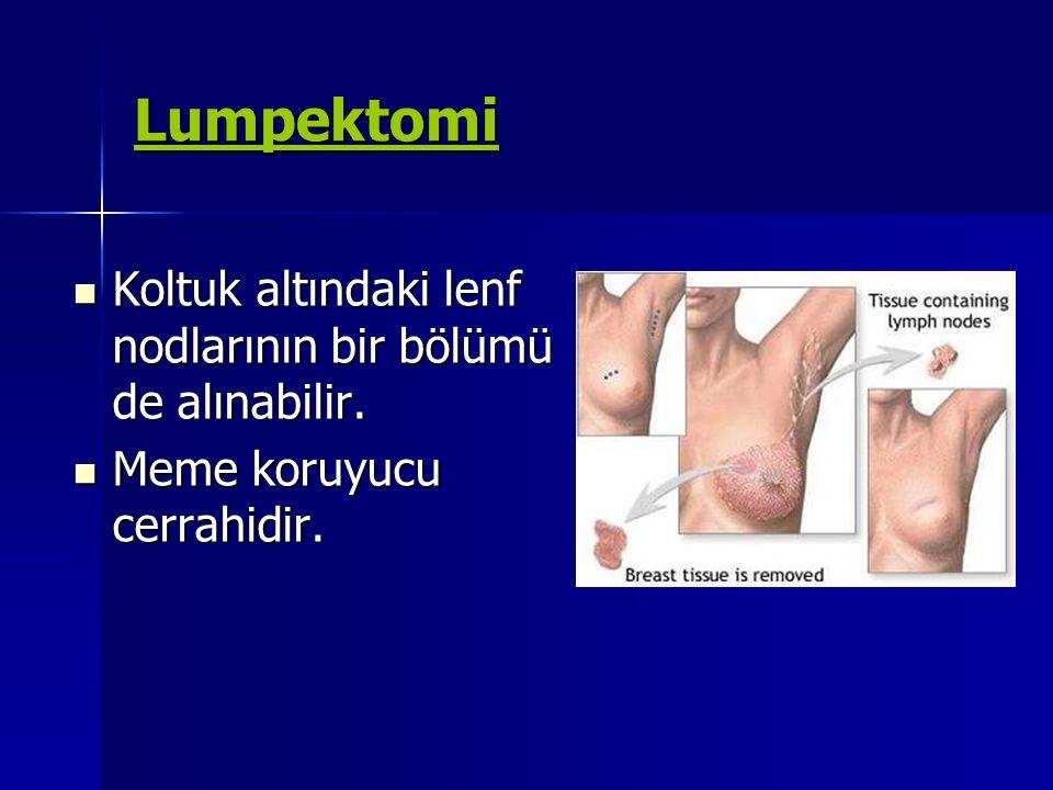 Lumpektomi Koltuk altındaki lenf nodlarının bir bölümü de alınabilir. Koltuk altındaki lenf nodlarının bir bölümü de alınabilir. Meme koruyucu cerrahi