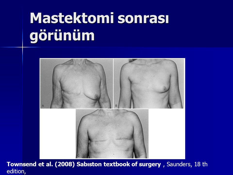 Mastektomi sonrası görünüm Townsend et al. (2008) Sabıston textbook of surgery, Saunders, 18 th edition,