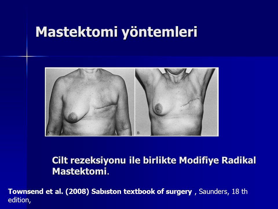 Mastektomi yöntemleri Cilt rezeksiyonu ile birlikte Modifiye Radikal Mastektomi Cilt rezeksiyonu ile birlikte Modifiye Radikal Mastektomi. Townsend et