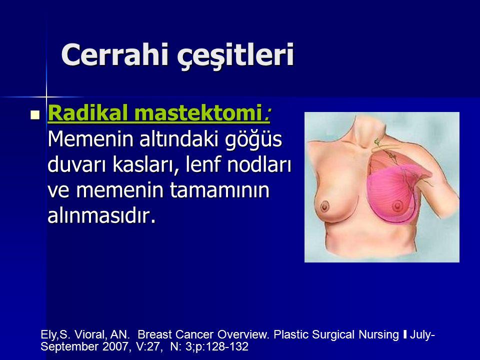 Cerrahi çeşitleri Radikal mastektomi: Memenin altındaki göğüs duvarı kasları, lenf nodları ve memenin tamamının alınmasıdır. Radikal mastektomi: Memen