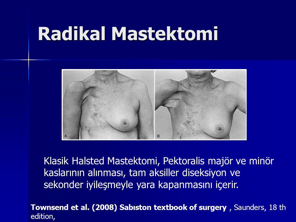 Radikal Mastektomi Klasik Halsted Mastektomi, Pektoralis majör ve minör kaslarının alınması, tam aksiller diseksiyon ve sekonder iyileşmeyle yara kapa