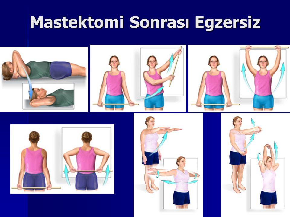 Mastektomi Sonrası Egzersiz