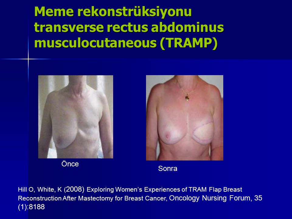 Meme rekonstrüksiyonu transverse rectus abdominus musculocutaneous (TRAMP) Önce Sonra Hill O, White, K ( 2008) Exploring Women's Experiences of TRAM Flap Breast Reconstruction After Mastectomy for Breast Cancer, Oncology Nursing Forum, 35 (1):8188
