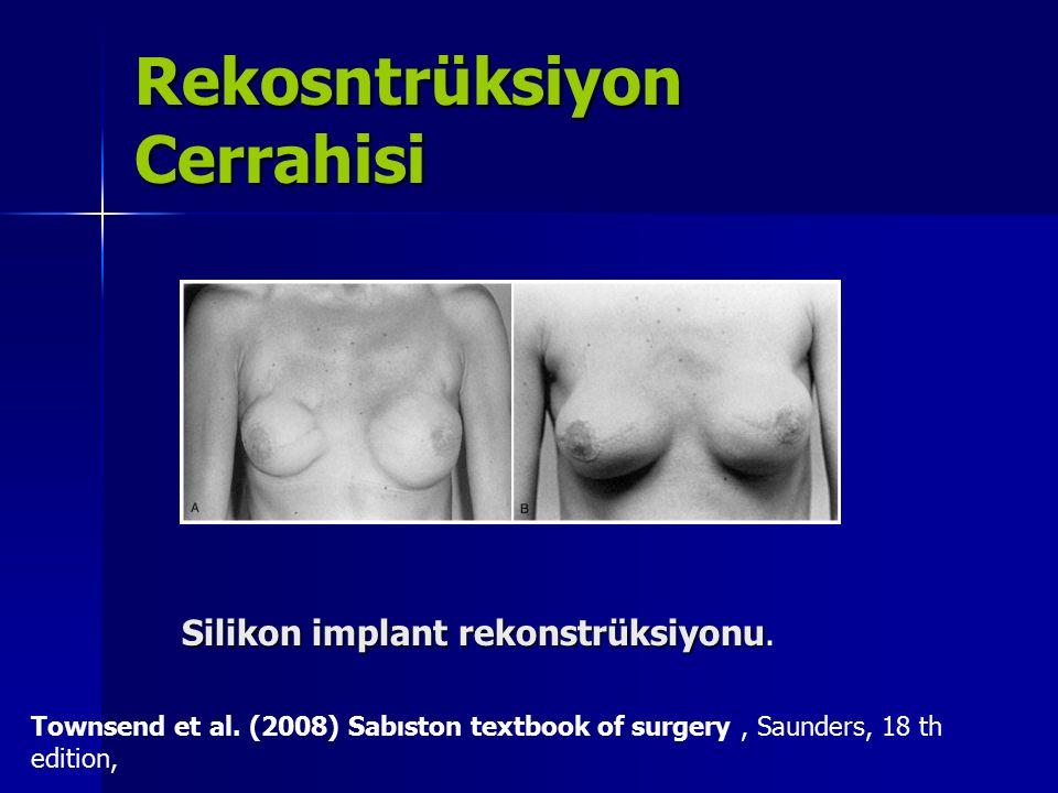 Rekosntrüksiyon Cerrahisi Silikon implant rekonstrüksiyonu Silikon implant rekonstrüksiyonu. Townsend et al. (2008) Sabıston textbook of surgery, Saun