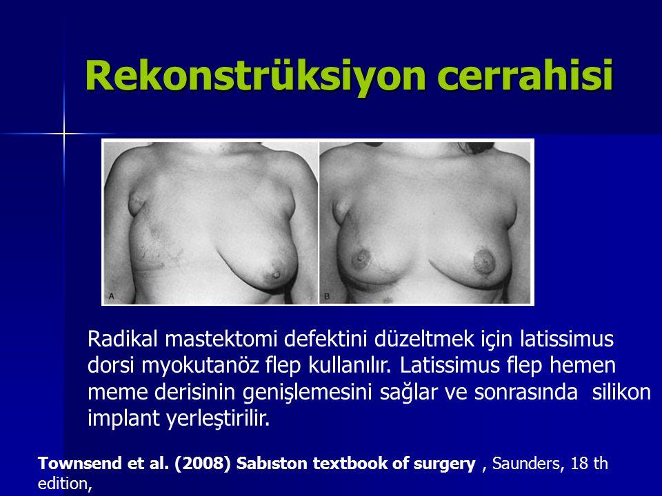 Rekonstrüksiyon cerrahisi Radikal mastektomi defektini düzeltmek için latissimus dorsi myokutanöz flep kullanılır. Latissimus flep hemen meme derisini